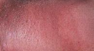 http://n3.datasn.io/data/api/v1/n3_chennan/skin_disease_5/by_table/skin_disease_image_access/17/3d/4c/f0/173d4cf0b537ae59749fd4b7143700d01e24506e.jpg