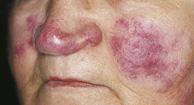 http://n3.datasn.io/data/api/v1/n3_chennan/skin_disease_5/by_table/skin_disease_image_access/85/8f/5a/4a/858f5a4a2346a2a0ea229cc50c5296b622891130.jpg
