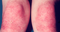 http://n3.datasn.io/data/api/v1/n3_chennan/skin_disease_5/by_table/skin_disease_image_access/b2/bf/e9/c4/b2bfe9c406ad782d1141356109959c039e474889.jpg