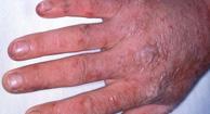 http://n3.datasn.io/data/api/v1/n3_chennan/skin_disease_5/by_table/skin_disease_image_access/cc/57/7c/19/cc577c1903499edb39f2eee8152ff86cb95865fb.jpg