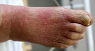 http://n3.datasn.io/data/api/v1/n3_chennan/skin_disease_5/by_table/skin_disease_image_access/d4/e5/c3/8f/d4e5c38ff82b54b2702b1f7883d7296f6003365f.jpg