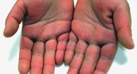 http://n3.datasn.io/data/api/v1/n3_chennan/skin_disease_5/by_table/skin_disease_image_access/d7/1b/86/79/d71b86792cb78153265bbf925b53250f5de92652.jpg