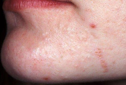 http://n3.datasn.io/data/api/v1/n3_chennan/skin_disease_6/by_table/skin_disease_image_1_access/1c/ff/ba/68/1cffba68edd128a8d1d1de2dc430666dcc0de362.jpg