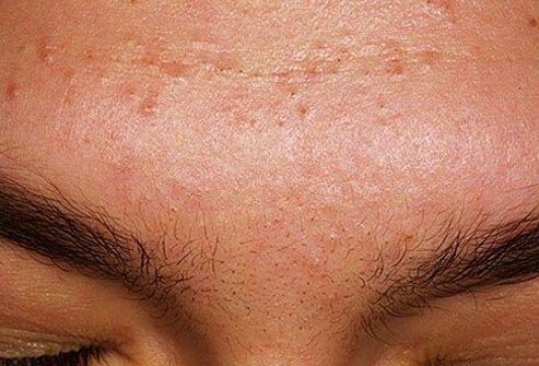 http://n3.datasn.io/data/api/v1/n3_chennan/skin_disease_6/by_table/skin_disease_image_1_access/3a/6f/10/60/3a6f1060c3a51b1bb198e60ac037d3dc2ae780b3.jpg