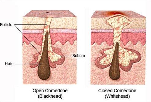 http://n3.datasn.io/data/api/v1/n3_chennan/skin_disease_6/by_table/skin_disease_image_1_access/4b/8e/8d/03/4b8e8d034b276122c01d43eec9f259a78be28f95.jpg