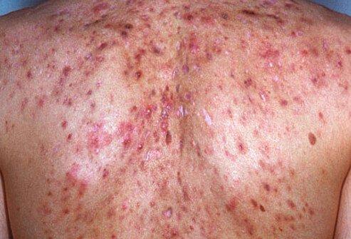 http://n3.datasn.io/data/api/v1/n3_chennan/skin_disease_6/by_table/skin_disease_image_1_access/4e/bc/0d/a9/4ebc0da9c0197976a50d8e69ca30b503c87a6de1.jpg