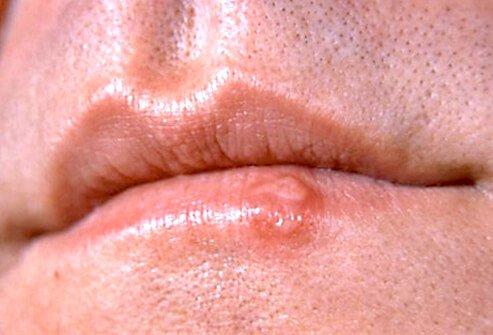 http://n3.datasn.io/data/api/v1/n3_chennan/skin_disease_6/by_table/skin_disease_image_1_access/84/22/9f/0d/84229f0d5e037fe14f56c8d3b095d1799cc89edc.jpg