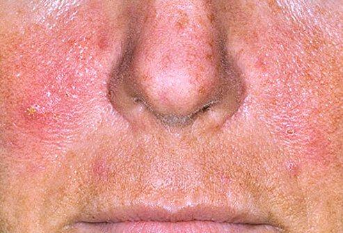 http://n3.datasn.io/data/api/v1/n3_chennan/skin_disease_6/by_table/skin_disease_image_1_access/9a/c1/1d/08/9ac11d08e26f6a6fba0815cfc5fde3131a85eda6.jpg