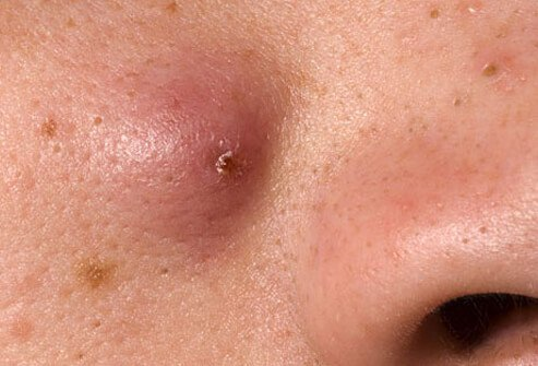 http://n3.datasn.io/data/api/v1/n3_chennan/skin_disease_6/by_table/skin_disease_image_1_access/9d/5a/f9/29/9d5af929c75713608dd34f7e6ae3b3b12055b74f.jpg