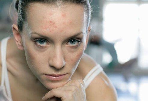 http://n3.datasn.io/data/api/v1/n3_chennan/skin_disease_6/by_table/skin_disease_image_1_access/9f/56/e8/13/9f56e813c0e4b53ce74a61e7c3c64dbd309dead5.jpg
