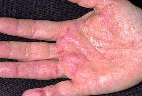 http://n3.datasn.io/data/api/v1/n3_chennan/skin_disease_6/by_table/skin_disease_image_1_access/d2/44/78/21/d244782137337e8fb24b84c6e42a9aaca091b01d.jpg