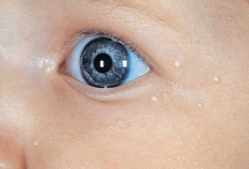 http://n3.datasn.io/data/api/v1/n3_chennan/skin_disease_6/by_table/skin_disease_image_1_access/e8/53/f6/da/e853f6dae61a32033036bad4e90de341258e9d57.jpg