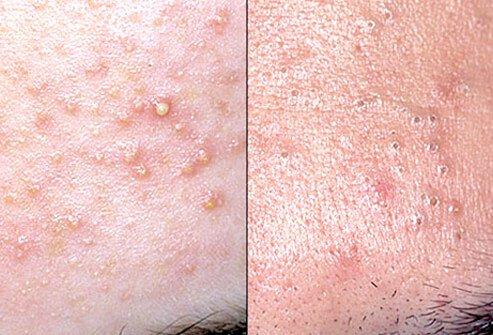 http://n3.datasn.io/data/api/v1/n3_chennan/skin_disease_6/by_table/skin_disease_image_1_access/f5/dc/80/33/f5dc8033232bfbe6098c43293ea6b4d5499d2d60.jpg