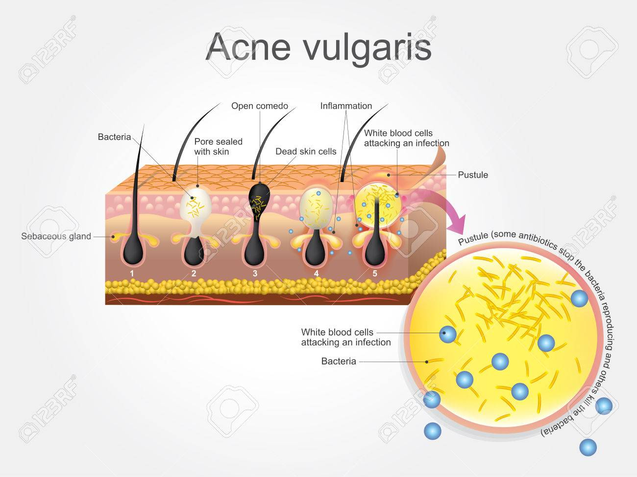 http://n3.datasn.io/data/api/v1/n3zm/image_of_skin_disease_5/by_table/skin_disease_image_download_access/08/af/a2/44/08afa244ea7ee1d3dd20eabd2283503fd06993bc.jpg