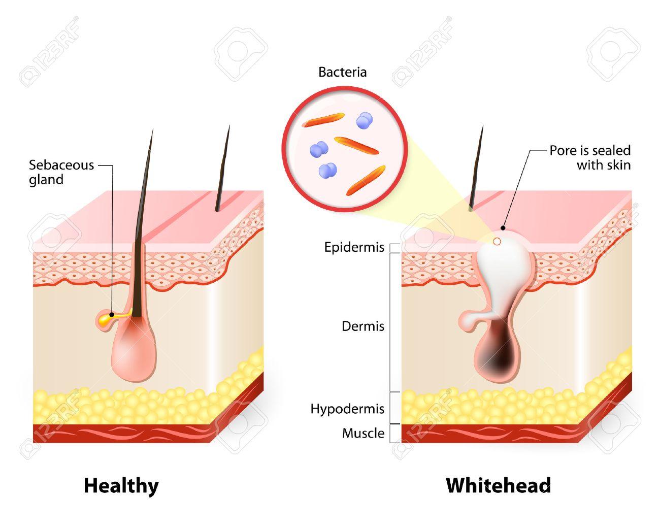 http://n3.datasn.io/data/api/v1/n3zm/image_of_skin_disease_5/by_table/skin_disease_image_download_access/20/7a/4c/41/207a4c415c9ba7cfba172a09cc2983fcaeb05f08.jpg