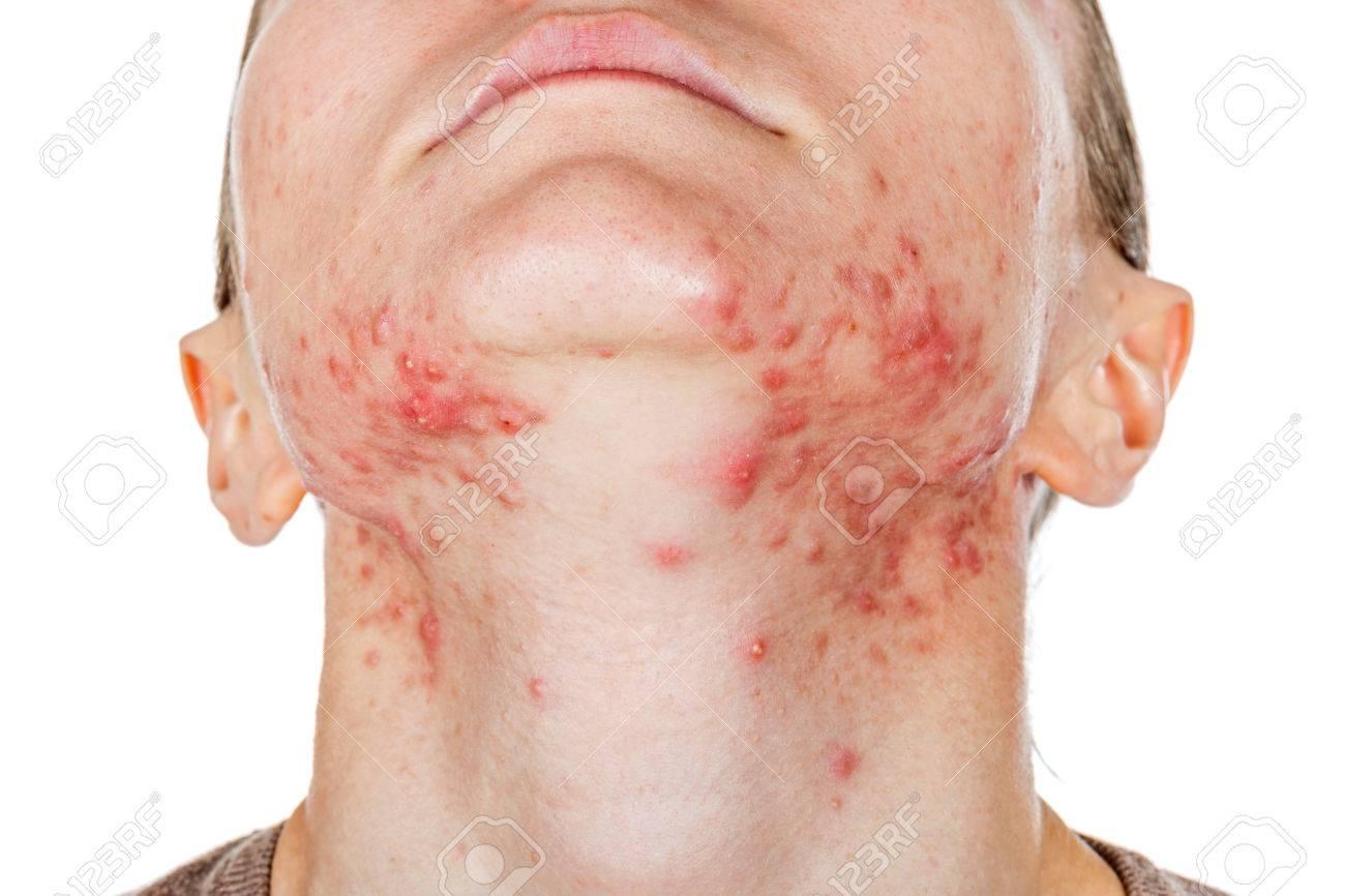 http://n3.datasn.io/data/api/v1/n3zm/image_of_skin_disease_5/by_table/skin_disease_image_download_access/2c/26/2c/07/2c262c07d846347df347f65fa1ce8314beb39d3f.jpg