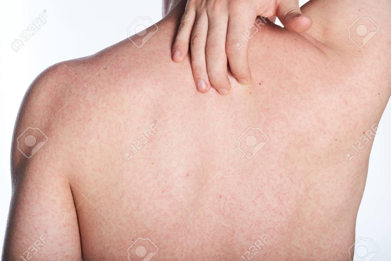 http://n3.datasn.io/data/api/v1/n3zm/image_of_skin_disease_5/by_table/skin_disease_image_download_access/4f/bf/b3/f0/4fbfb3f072be1adce8ba8e0cf07d12c6340ff42c.jpg
