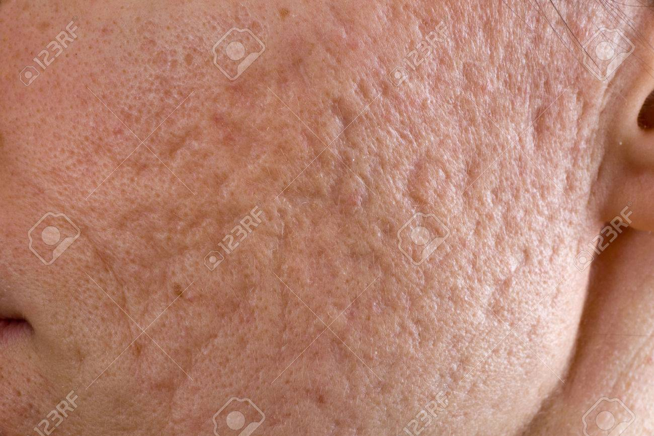 http://n3.datasn.io/data/api/v1/n3zm/image_of_skin_disease_5/by_table/skin_disease_image_download_access/79/f2/31/c1/79f231c11d8bf5a8d56d8a04baaae88411ae6aa8.jpg