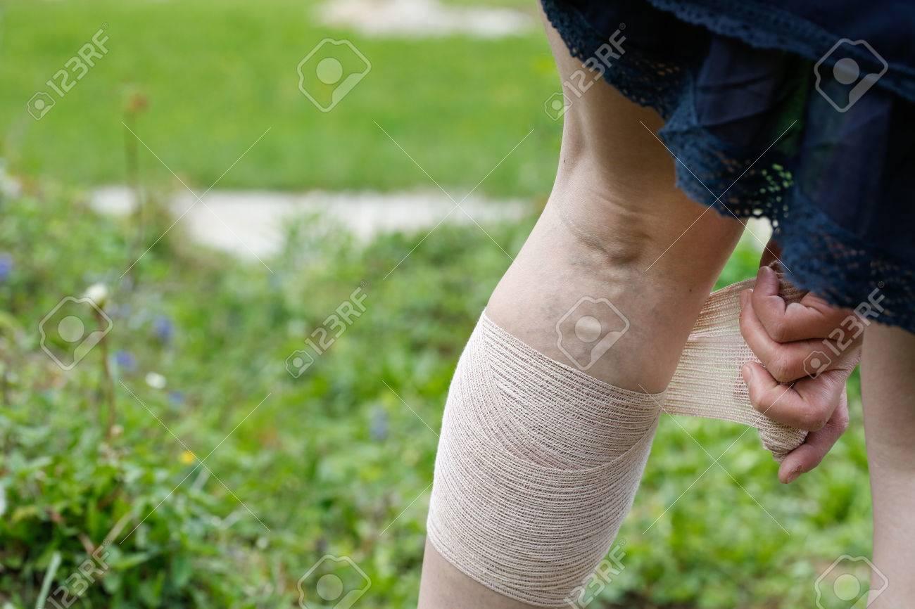 http://n3.datasn.io/data/api/v1/n3zm/image_of_skin_disease_5/by_table/skin_disease_image_download_access/ad/15/29/73/ad15297357de4b04cd6c4bc949b266d338387260.jpg