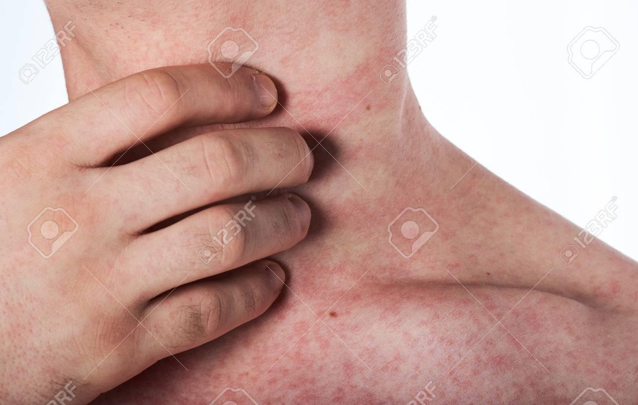 http://n3.datasn.io/data/api/v1/n3zm/image_of_skin_disease_5/by_table/skin_disease_image_download_access/b3/b1/17/7e/b3b1177ec7fb4634f047e14c6b39680030844566.jpg