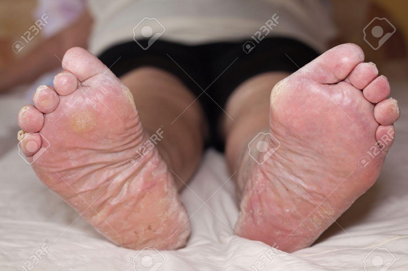 http://n3.datasn.io/data/api/v1/n3zm/image_of_skin_disease_5/by_table/skin_disease_image_download_access/bc/a5/8e/82/bca58e8214f9b429c6754ee05fb316cdc7012477.jpg