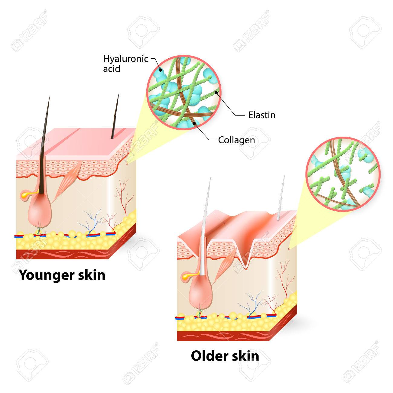http://n3.datasn.io/data/api/v1/n3zm/image_of_skin_disease_5/by_table/skin_disease_image_download_access/db/17/45/ed/db1745edde8b837fff38ef1e0a02e40e3f604a3a.jpg