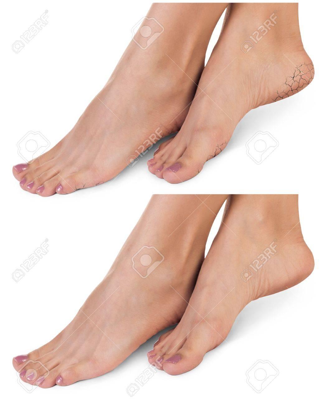 http://n3.datasn.io/data/api/v1/n3zm/image_of_skin_disease_5/by_table/skin_disease_image_download_access/eb/c3/61/bd/ebc361bdc2c9607efb2bad41f30c068949dde9b2.jpg