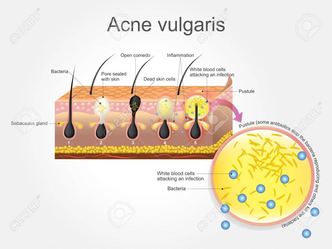 http://n3.datasn.io/data/api/v1/n3zm/image_of_skin_disease_5/main/skin_disease_image_download//08/af/a2/44/08afa244ea7ee1d3dd20eabd2283503fd06993bc.jpg