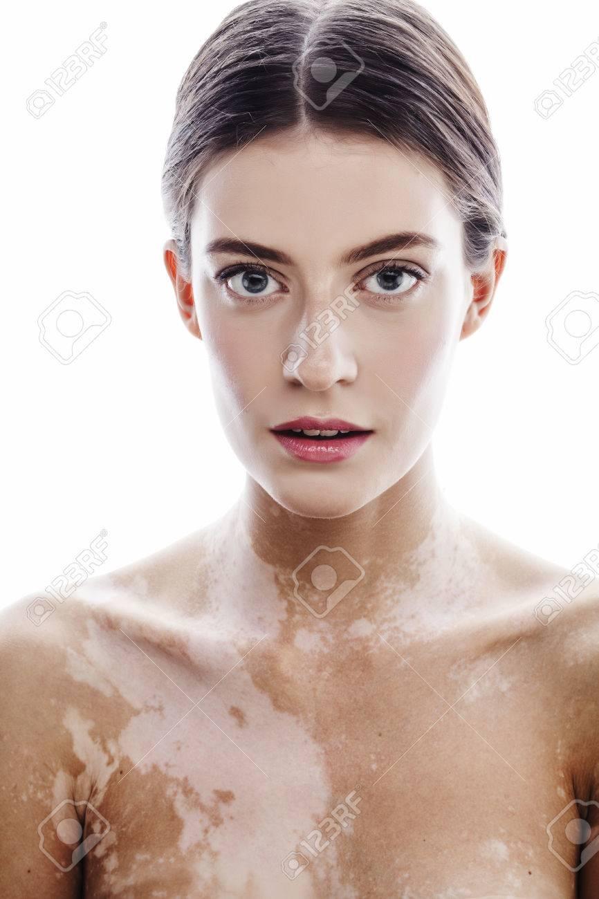 http://n3.datasn.io/data/api/v1/n3zm/image_of_skin_disease_5/main/skin_disease_image_download//27/02/05/ed/270205ed12b624f394d65005092b33286e4ab1b1.jpg