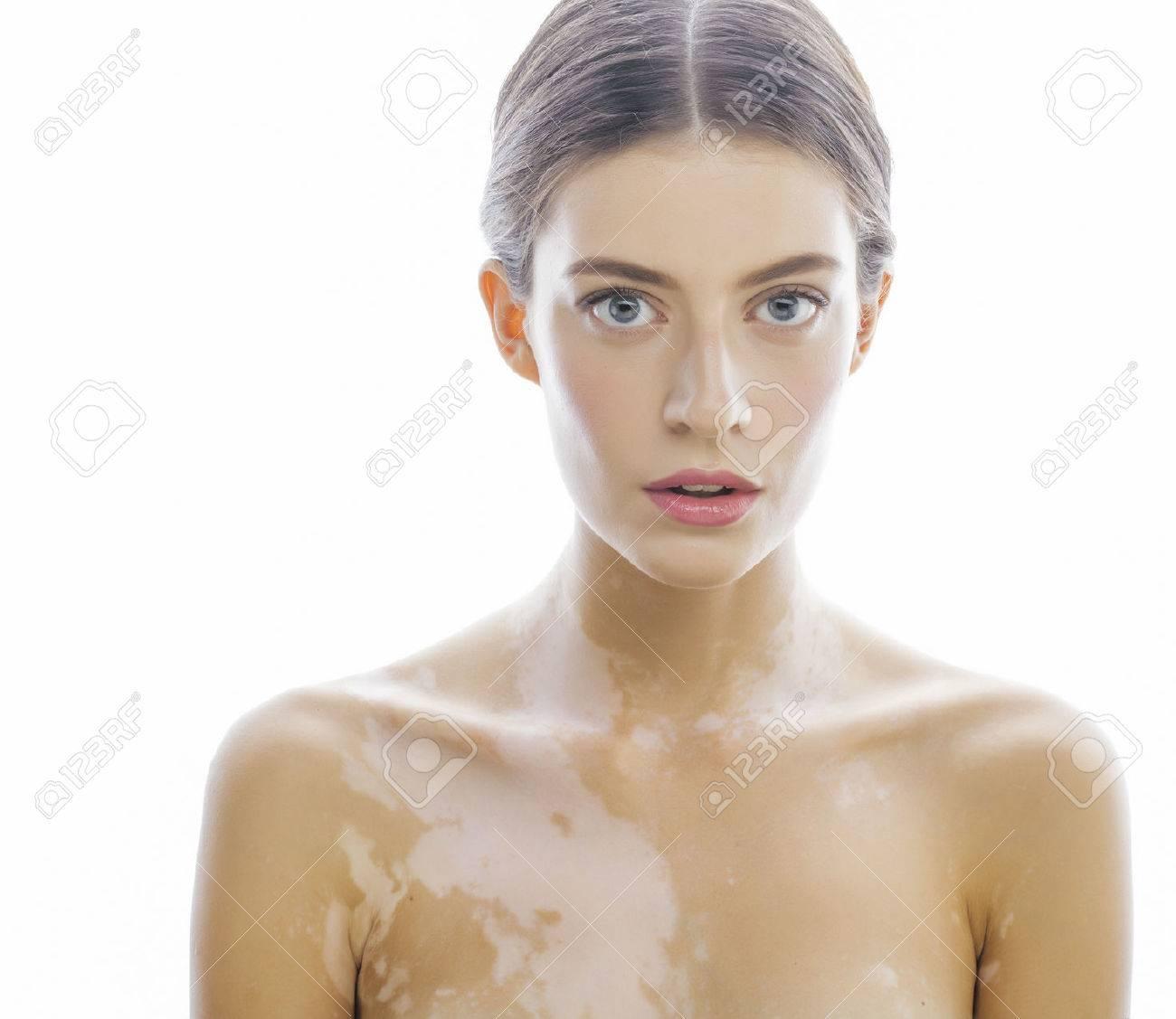 http://n3.datasn.io/data/api/v1/n3zm/image_of_skin_disease_5/main/skin_disease_image_download//45/70/51/98/45705198d89136096cd1cca101d850c0cb81e6a1.jpg