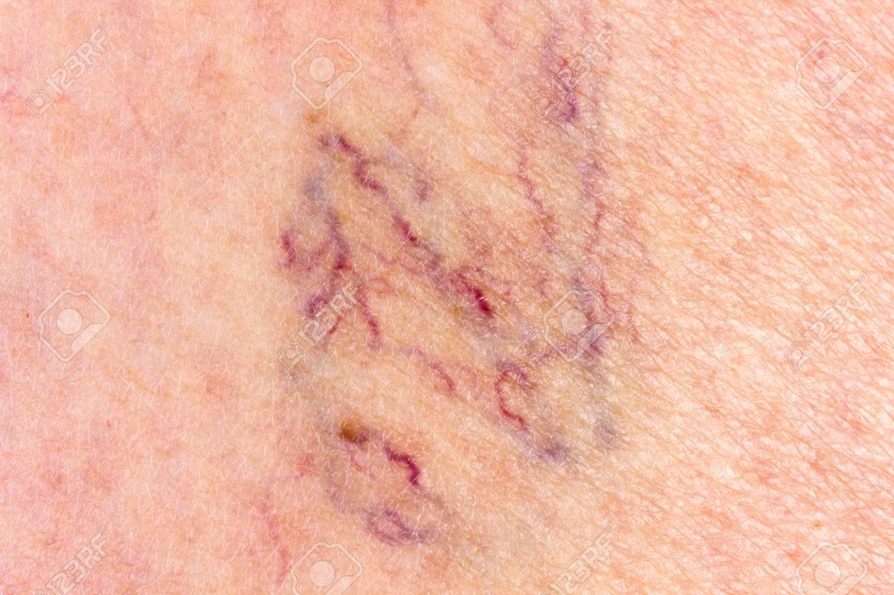 http://n3.datasn.io/data/api/v1/n3zm/image_of_skin_disease_5/main/skin_disease_image_download//56/eb/b9/2b/56ebb92b53da1e7882a9cae6141961e5df52c0c9.jpg
