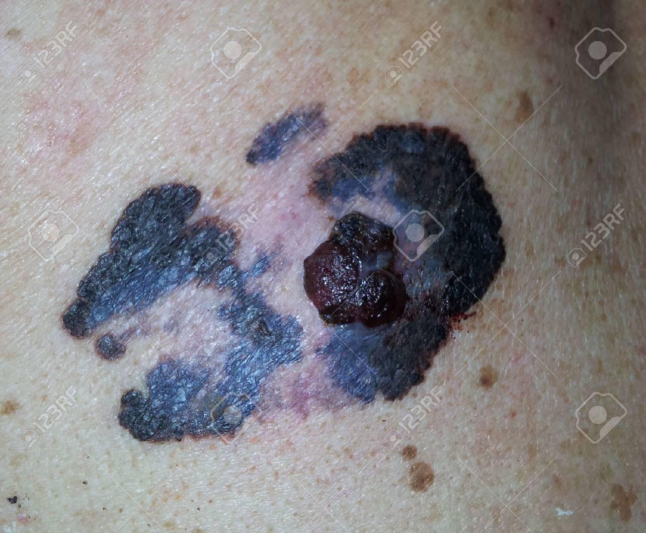 http://n3.datasn.io/data/api/v1/n3zm/image_of_skin_disease_5/main/skin_disease_image_download//71/cc/67/ca/71cc67caf08c9ca505c584a8f9a8f4e2004dbf49.jpg