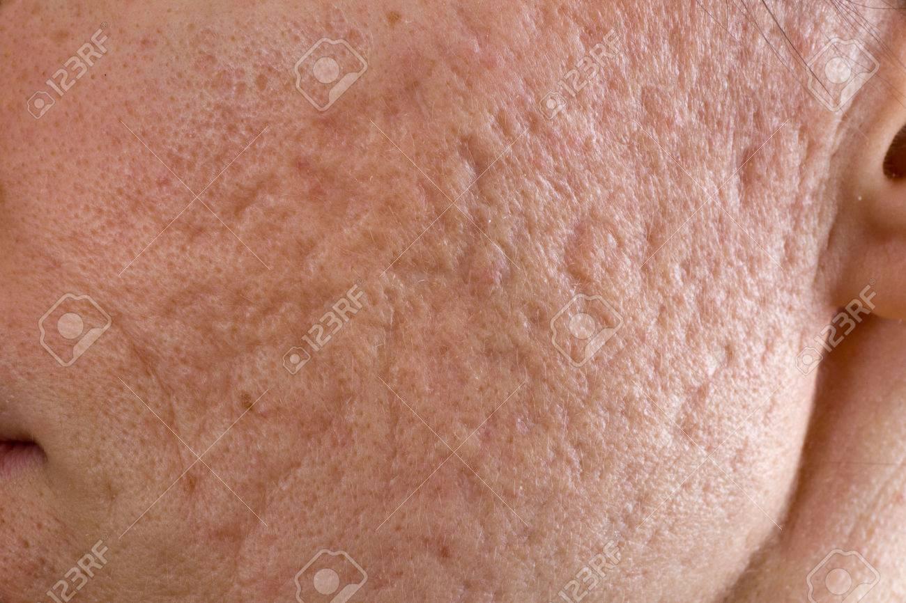 http://n3.datasn.io/data/api/v1/n3zm/image_of_skin_disease_5/main/skin_disease_image_download//79/f2/31/c1/79f231c11d8bf5a8d56d8a04baaae88411ae6aa8.jpg