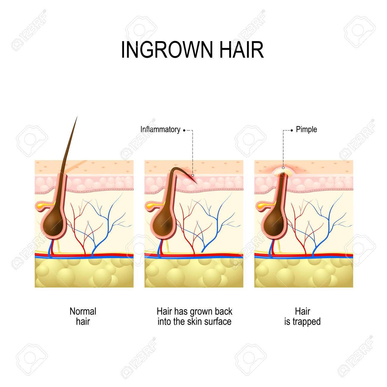 http://n3.datasn.io/data/api/v1/n3zm/image_of_skin_disease_5/main/skin_disease_image_download//7b/4b/da/0e/7b4bda0e4a869245aeca174d17b2c2e245e1eba4.jpg