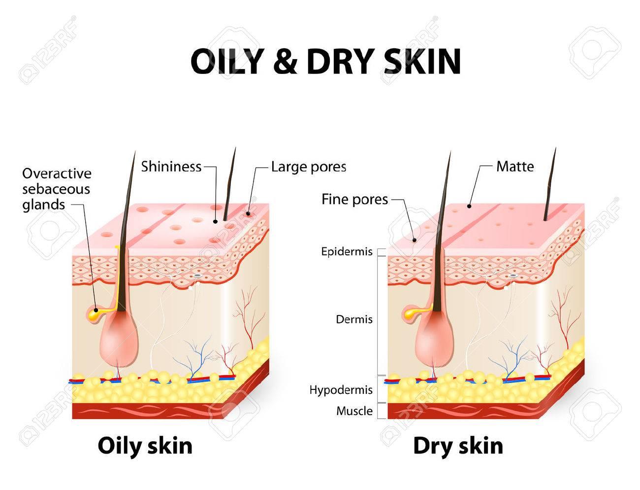 http://n3.datasn.io/data/api/v1/n3zm/image_of_skin_disease_5/main/skin_disease_image_download//7c/e9/19/eb/7ce919eb21d3f9756d1988e8f864bbc049e84af1.jpg