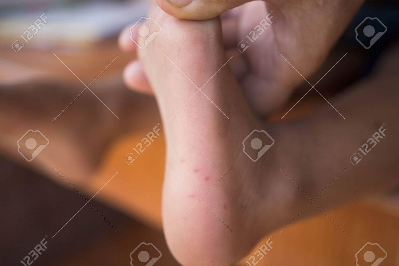 http://n3.datasn.io/data/api/v1/n3zm/image_of_skin_disease_5/main/skin_disease_image_download//95/fe/08/01/95fe0801fbce462c020798a2bc9b5816bcbe806a.jpg