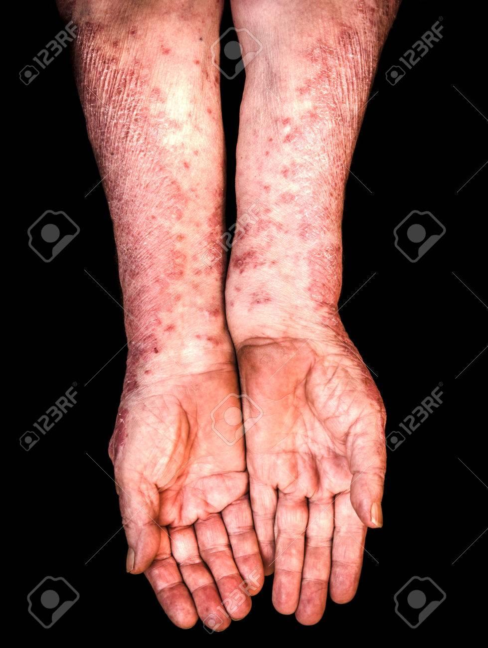 http://n3.datasn.io/data/api/v1/n3zm/image_of_skin_disease_5/main/skin_disease_image_download//9a/ac/95/b4/9aac95b464df82b64678e2504782292995e9b7fb.jpg