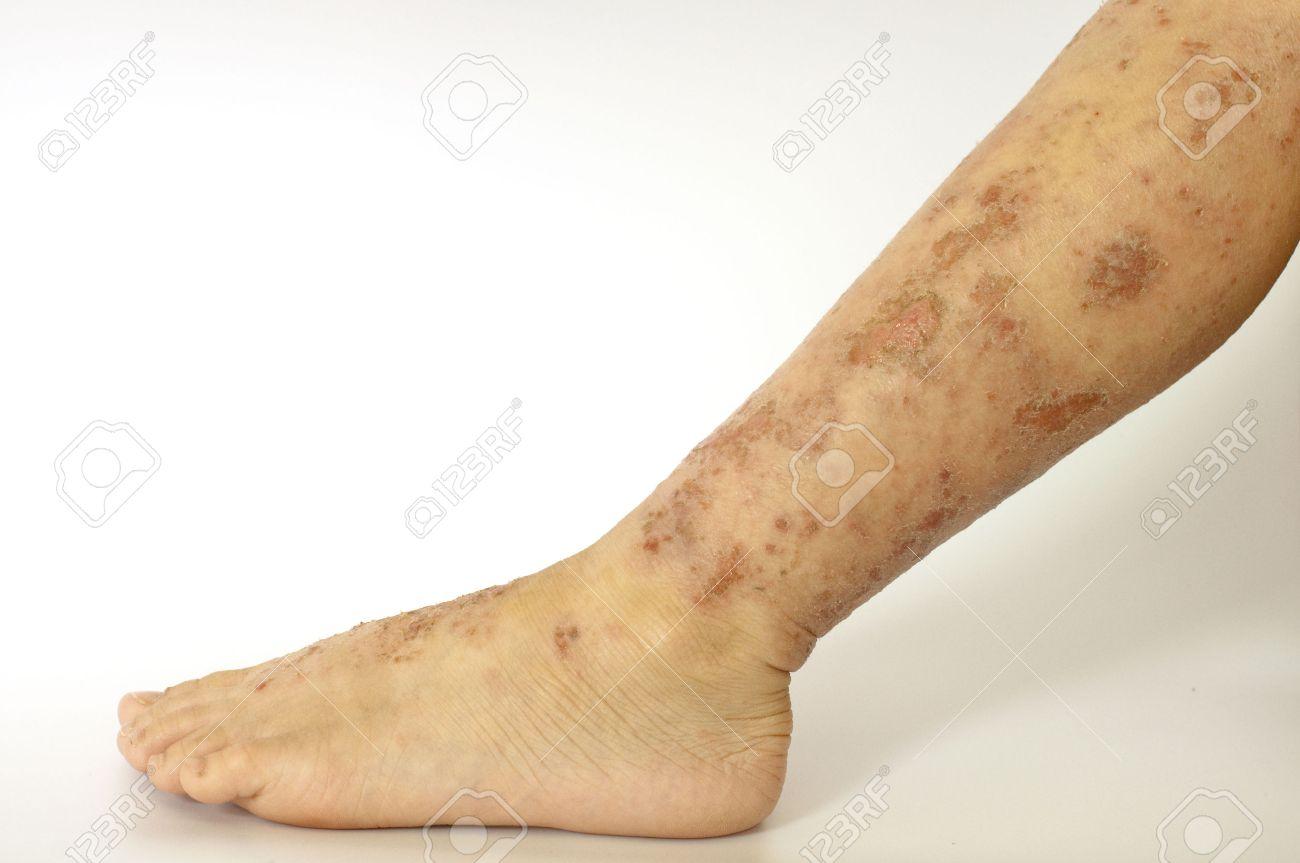 http://n3.datasn.io/data/api/v1/n3zm/image_of_skin_disease_5/main/skin_disease_image_download//9b/f1/f2/69/9bf1f269e12298861fe52321f9841de3da5251f1.jpg