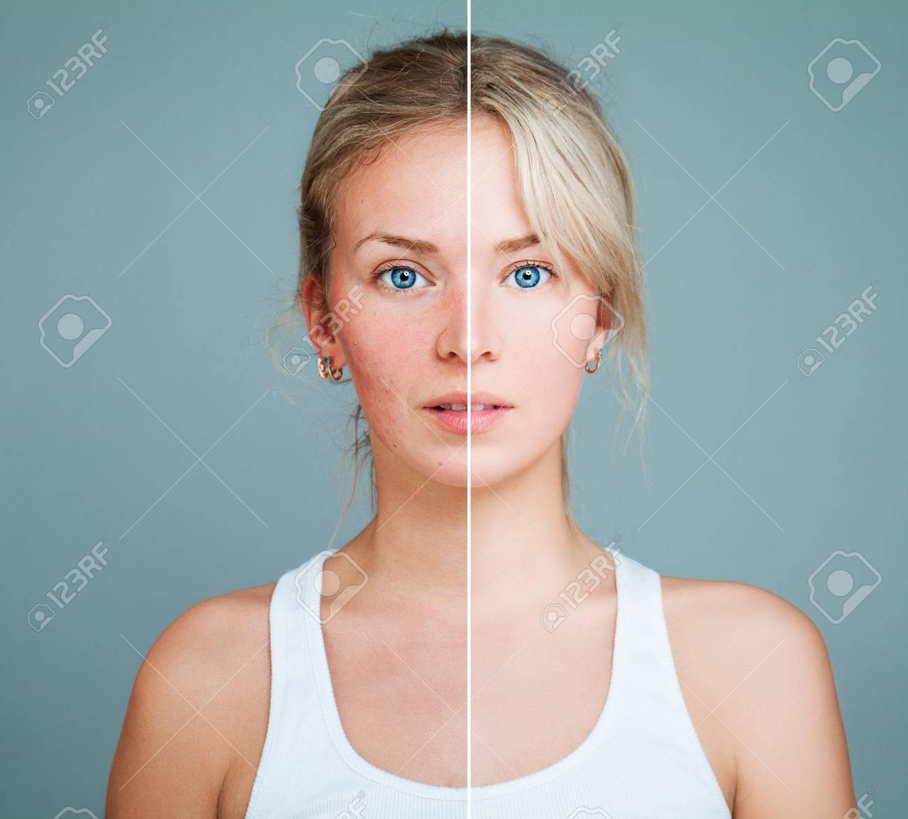 http://n3.datasn.io/data/api/v1/n3zm/image_of_skin_disease_5/main/skin_disease_image_download//b7/c3/f7/1e/b7c3f71e43571ba34aad9369e90a6da41353a651.jpg