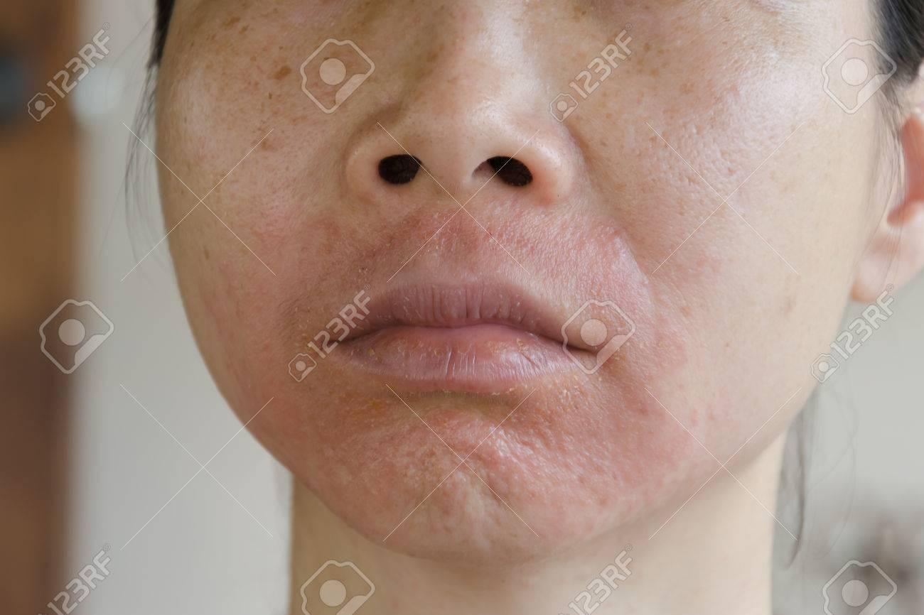 http://n3.datasn.io/data/api/v1/n3zm/image_of_skin_disease_5/main/skin_disease_image_download//ba/1f/04/b3/ba1f04b337b6dad9a3369980fc7f9ce9bcfec4a3.jpg