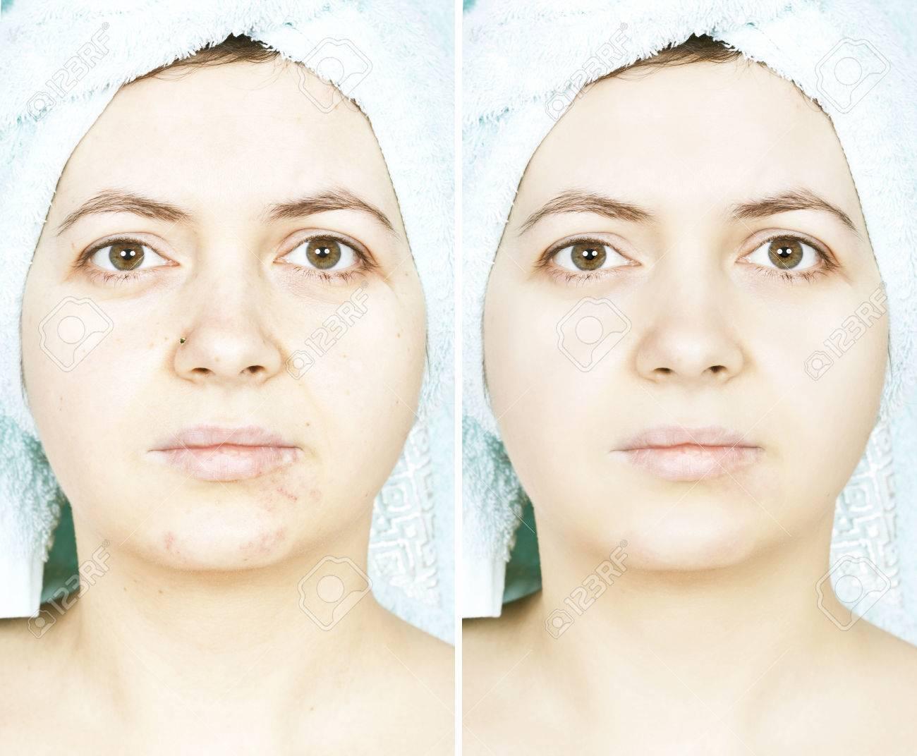 http://n3.datasn.io/data/api/v1/n3zm/image_of_skin_disease_5/main/skin_disease_image_download//c5/45/26/12/c545261298ea298747883cbc43a91377eb673aff.jpg