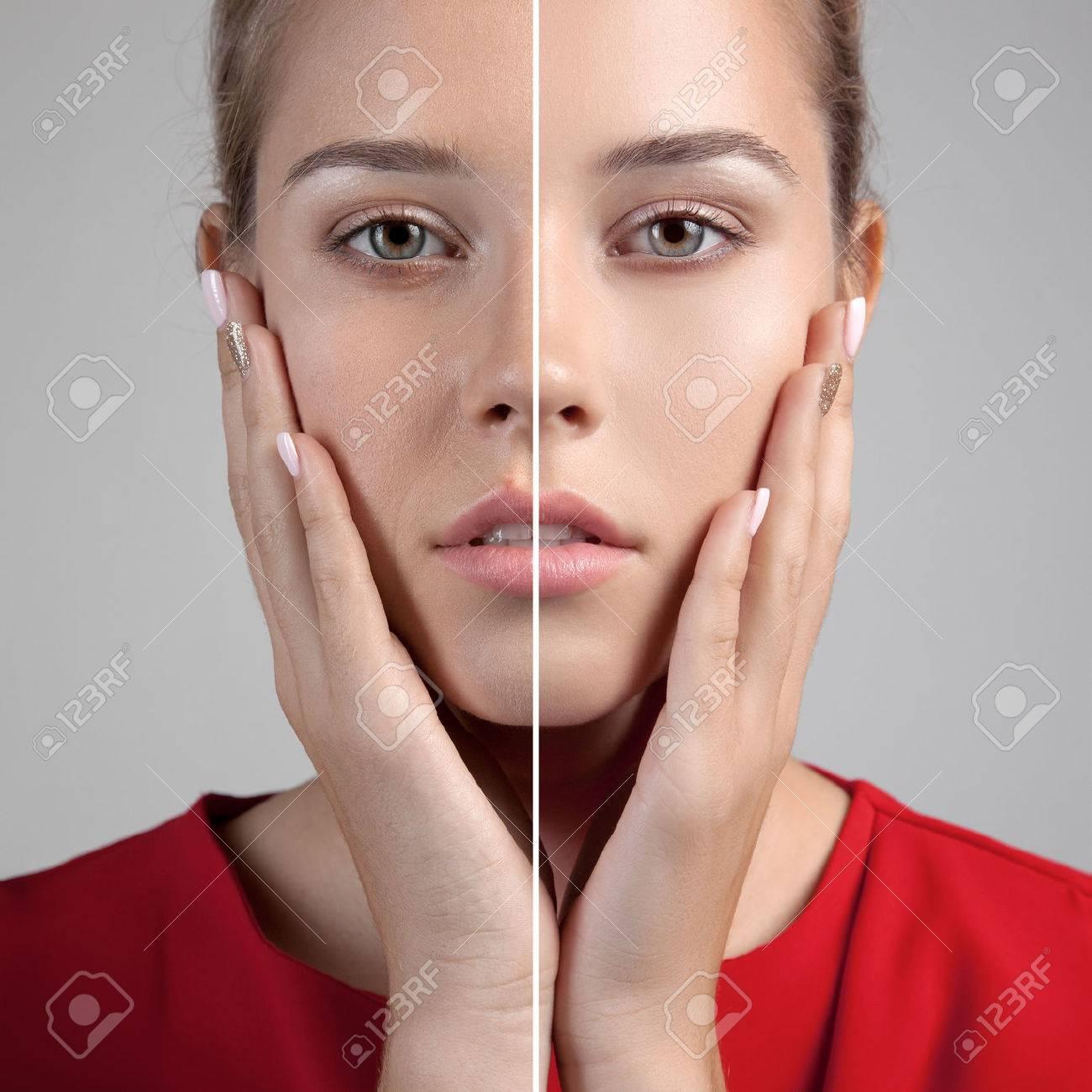http://n3.datasn.io/data/api/v1/n3zm/image_of_skin_disease_5/main/skin_disease_image_download//c8/5d/11/69/c85d1169920795fa8b32bbfd9aaafbd9fd328b70.jpg