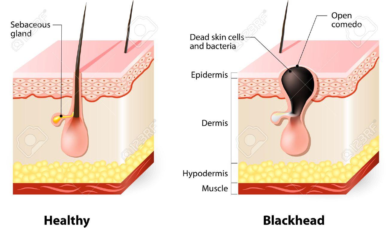 http://n3.datasn.io/data/api/v1/n3zm/image_of_skin_disease_5/main/skin_disease_image_download//d6/b9/e6/b5/d6b9e6b520ae8a3cb12273c6eaecc76cb3842d5e.jpg