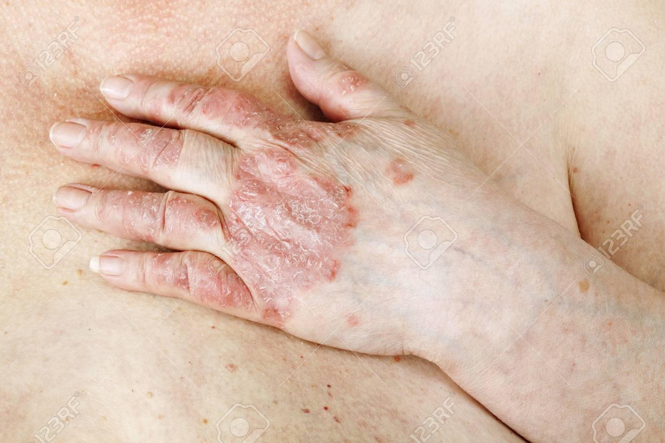 http://n3.datasn.io/data/api/v1/n3zm/image_of_skin_disease_5/main/skin_disease_image_download//d7/8e/2a/f1/d78e2af15865066531a4c217d6b822be324e553e.jpg