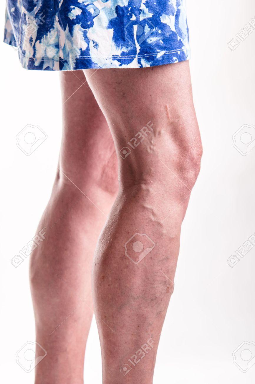 http://n3.datasn.io/data/api/v1/n3zm/image_of_skin_disease_5/main/skin_disease_image_download//e0/f7/96/e7/e0f796e76561bc92c274599ffcc445727e05b8f8.jpg