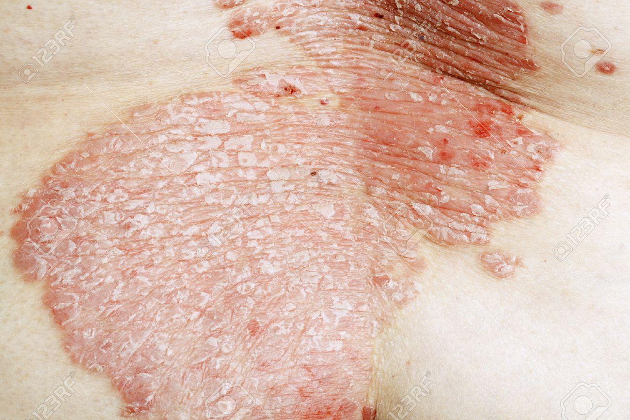 http://n3.datasn.io/data/api/v1/n3zm/image_of_skin_disease_5/main/skin_disease_image_download//eb/b2/16/6a/ebb2166a4edbfb5ac4538659d9c6214ac42de830.jpg