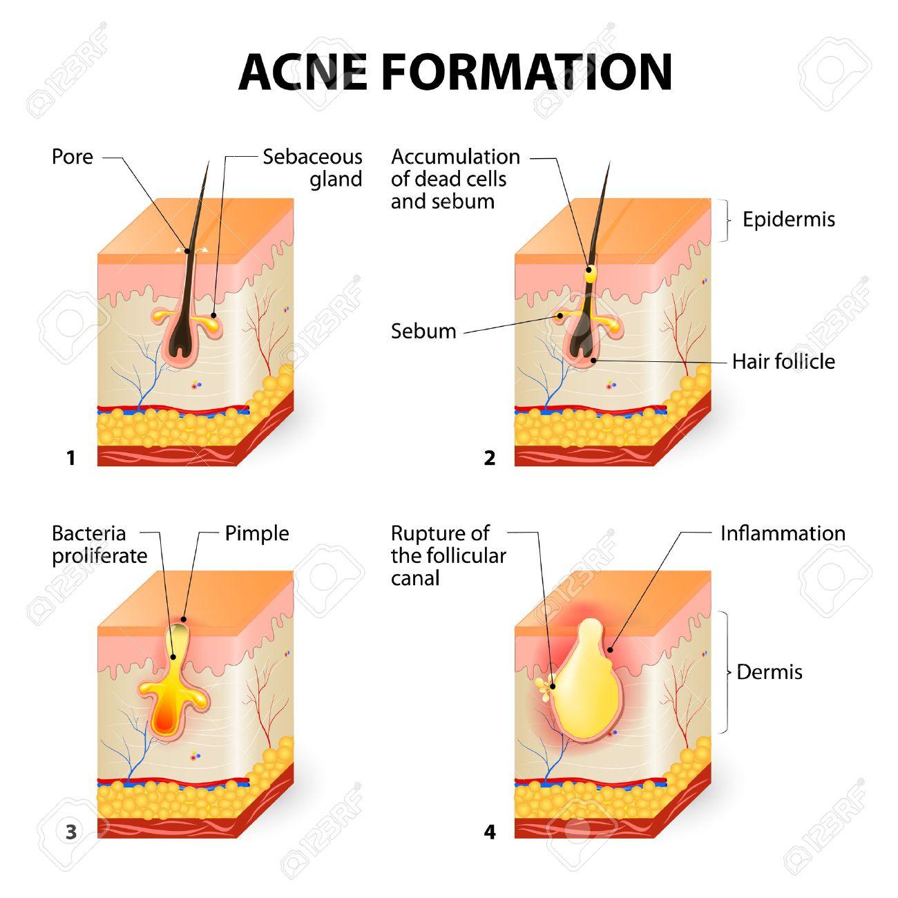 http://n3.datasn.io/data/api/v1/n3zm/image_of_skin_disease_5/main/skin_disease_image_download//f5/46/e9/46/f546e946ded293dcd535f9d26ea8386943cbb8aa.jpg