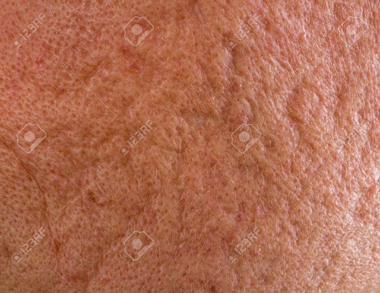 http://n3.datasn.io/data/api/v1/n3zm/image_of_skin_disease_5/main/skin_disease_image_download//fc/8a/82/1f/fc8a821f00ebdc7264a8f4667d7c9ad021748aa8.jpg